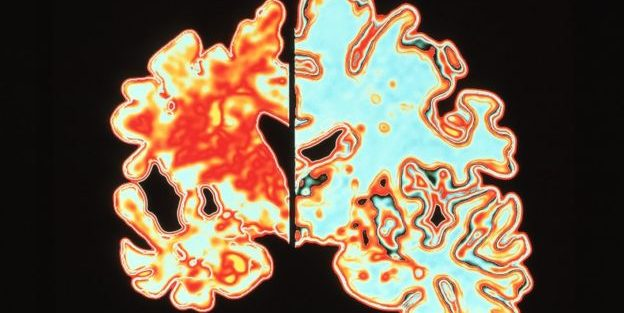 Sinais que indicam que alguém pode ter Alzheimer