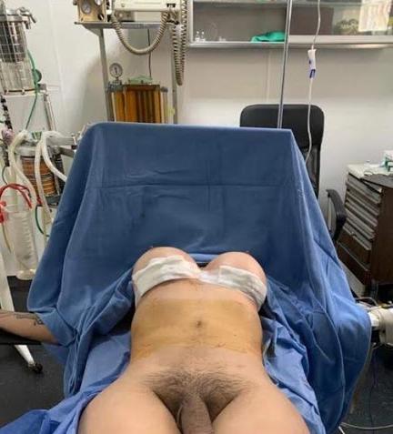 Metoidioplastia e Vaginectomia